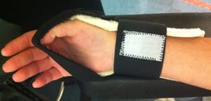 Orthèse d'enroulement du pouce